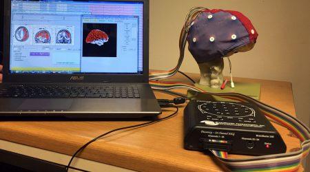 CVS-neurobeeldvorming