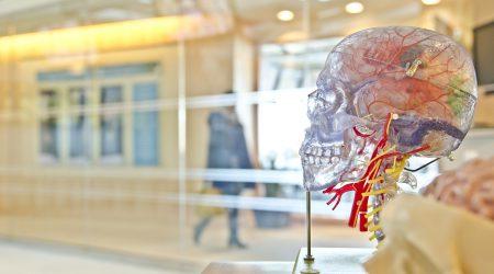 Neurologie-schedel