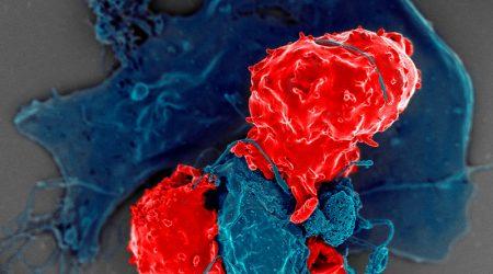 T-regulatory-cells_NIAID